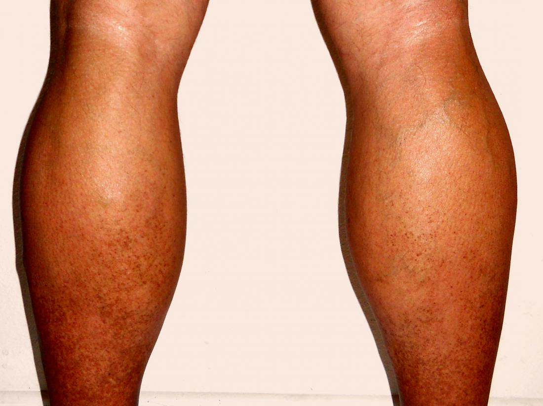 Swollen Legs And Ankles 8 Causes And Their Treatment
