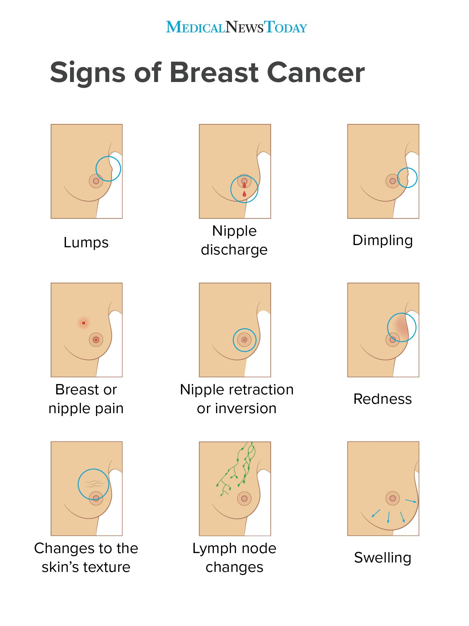 Breast Cancer Symptoms Early Signs, Pictures, And More