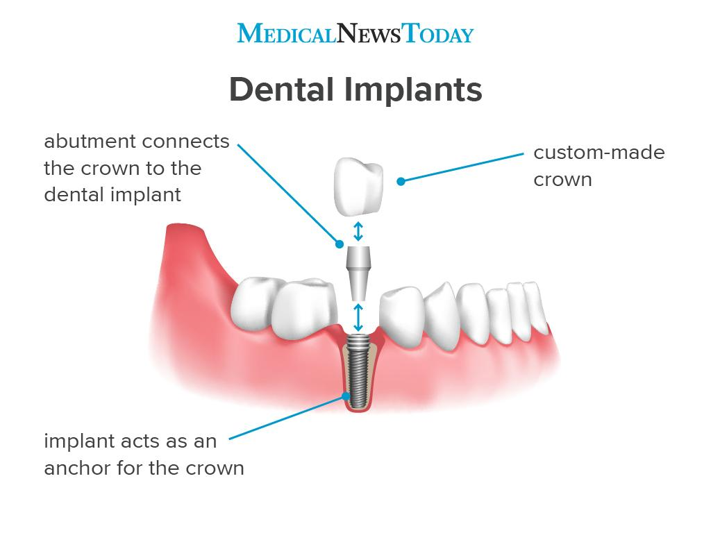 an infographic showing how dental implants work