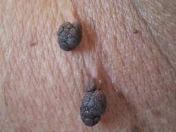 Mole disappears: Is it normal?