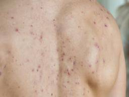 Blood-filled pimples: Causes, treatment, and types