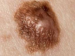 Bleeding mole: Causes and what to do