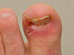 What to do about an ingrown toenail