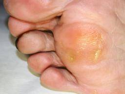 Skin Peeling Between Toes Causes And Treatment