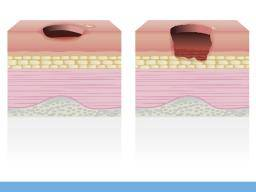 Bed Sores Treatment Stages And Prevention