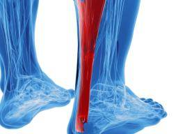 Tarsal tunnel syndrome: Treatment, exercises, and complications