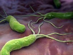 Gastritis congestiva antral corporal nodular