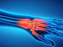 Radial nerve injury: Symptoms, causes, and treatment