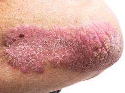 Malar rash: Causes, symptoms, and treatment