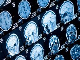 Mri Shows Brain Differences Among Adhd >> Adhd Large Imaging Study Confirms Differences In Several