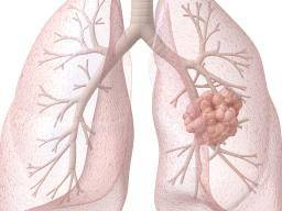 Stages of lung cancer: Stages, symptoms, diagnosis