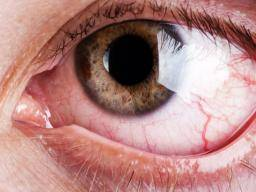 Itchy eyes: Causes and treatment options