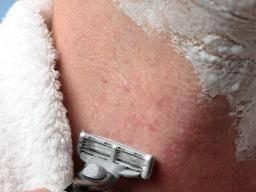 Folliculitis: Causes, symptoms, and treatment