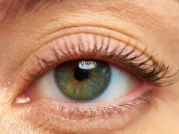 Droopy eyelid (ptosis): Causes, risk factors, and treatment