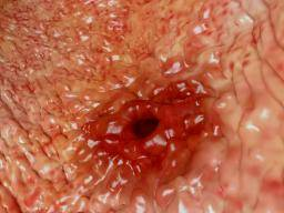 Bleeding Ulcer What Causes It And Is It Serious