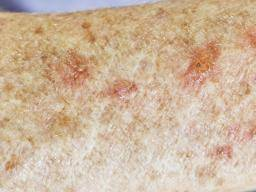 Hyperkeratosis: Causes, symptoms, and treatment