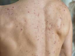 Back Acne How To Get Rid Of It And How To Prevent It