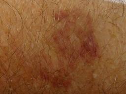 Senile purpura: Causes, symptoms, and diagnosis