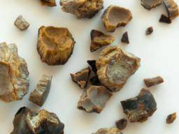 Kidney stones: Causes, symptoms, and treatment