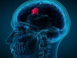 Glioblastoma: A new treatment for this deadly brain tumor?