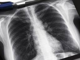 Asbestos / Mesothelioma News from Medical News Today