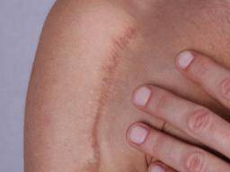 Natural Remedies To Remove Old Scars