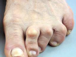 Broken toe: Symptoms, pictures, and treatment