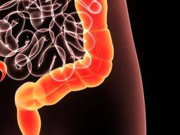 Volvulus: Definition, causes, and treatment