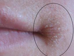 Angular cheilitis: Symptoms, treatment, and causes