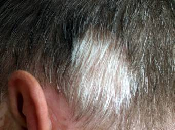 Cure For Gray Hair And Vitiligo Found