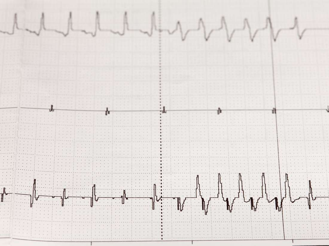 Arrhythmia: Causes, symptoms, types, and treatment