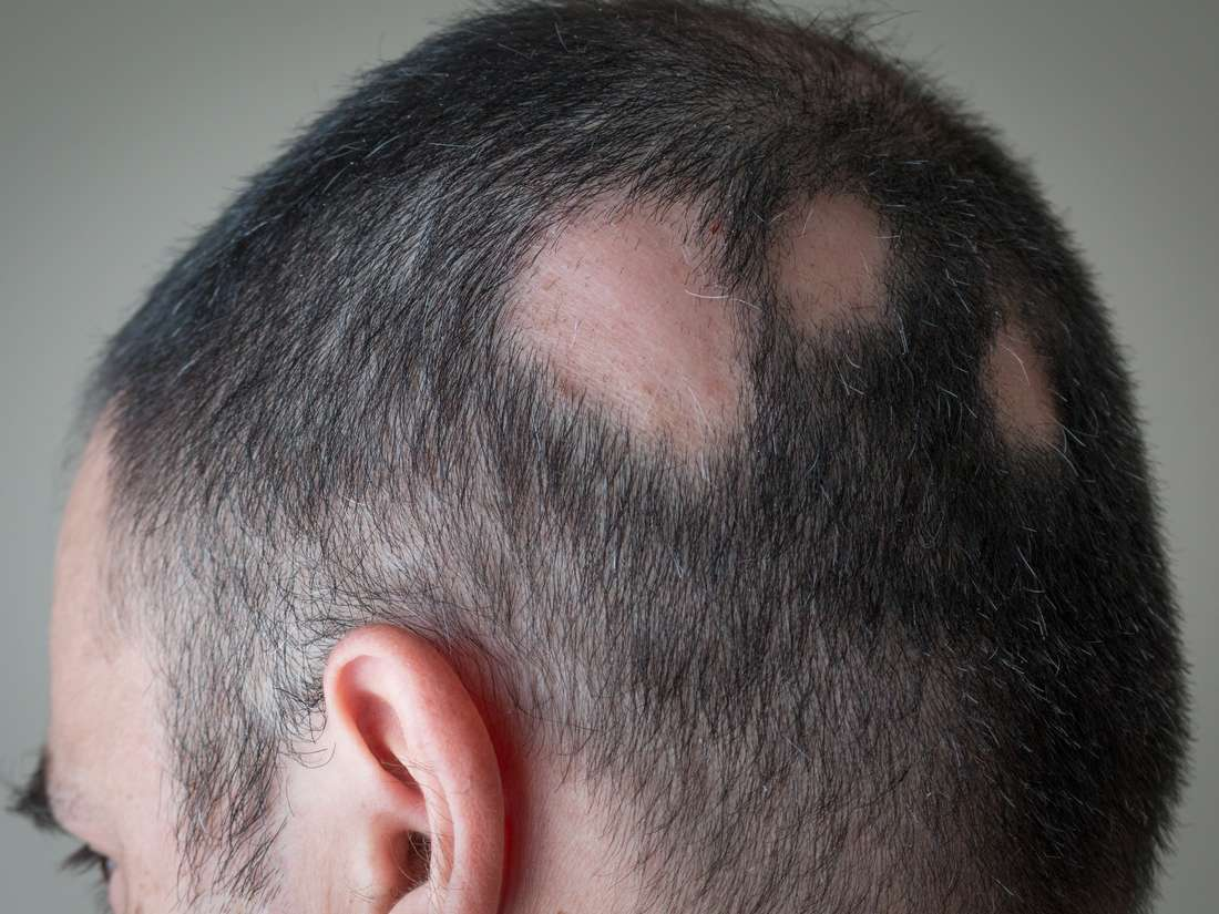 White hair: Causes and ways to prevent it