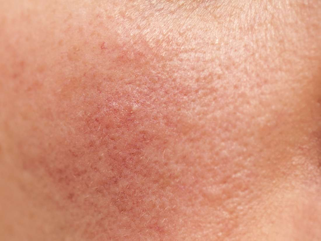 Phytophotodermatitis: Symptoms, treatment, and causes