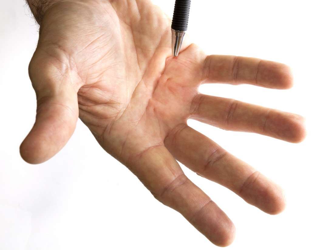 Dupuytren's contracture: Symptoms, causes, and risk factors