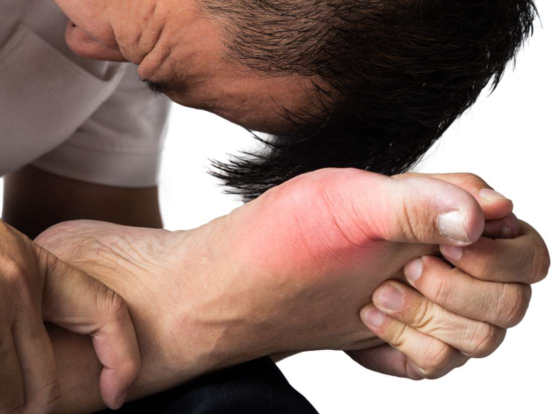 Complex regional pain syndrome: Types, symptoms, stages, and