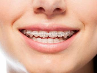 How to clean your retainer: Eight helpful tips