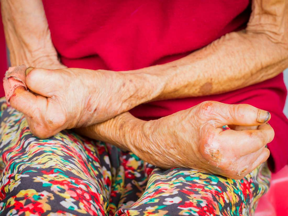Leprosy: Symptoms, diagnosis, and treatment