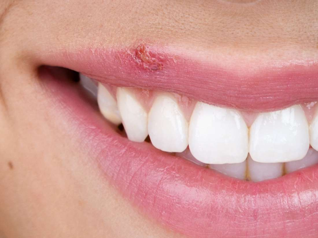 10 ways to get rid of canker sores