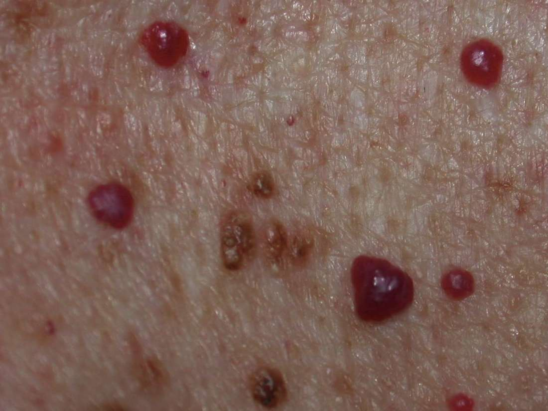 Cherry angioma: Symptoms, causes, and treatment