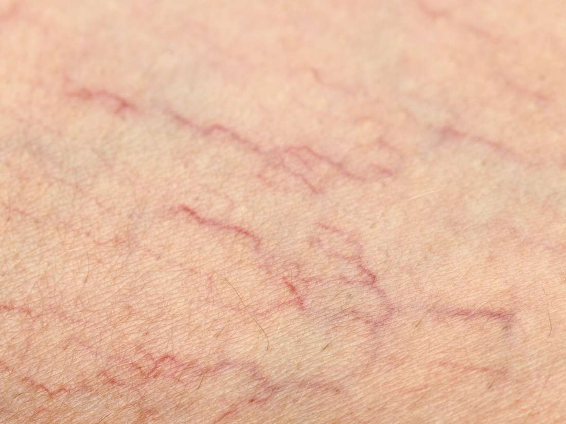 5 best essential oils for varicose veins: Which work best and why?