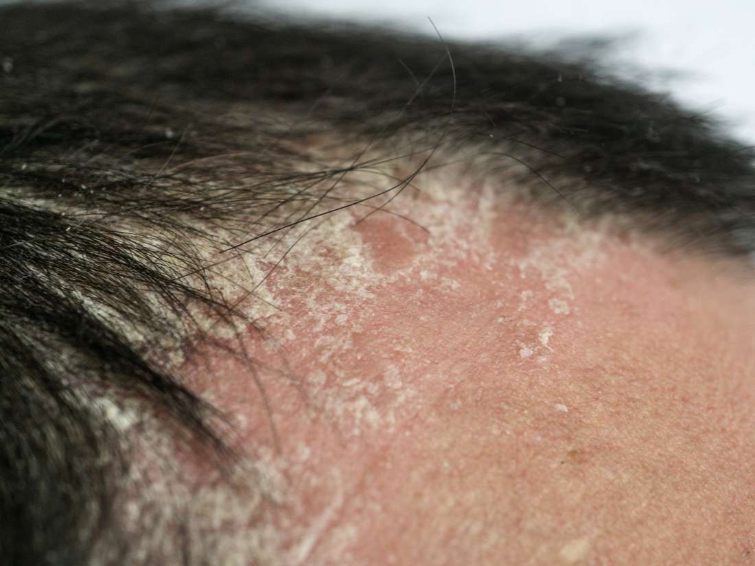 Itchy scalp and hair loss: The link, causes, and treatment