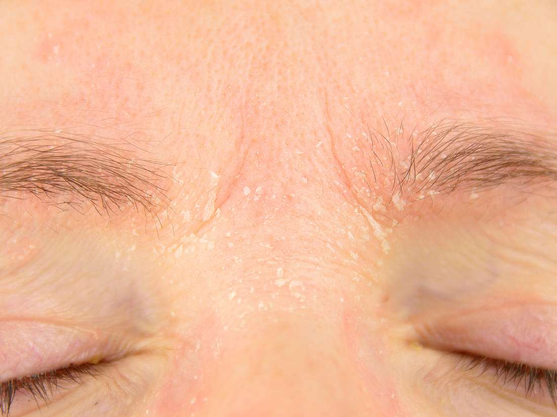 Psoriasis on the eyelids: Symptoms, causes, and treatment