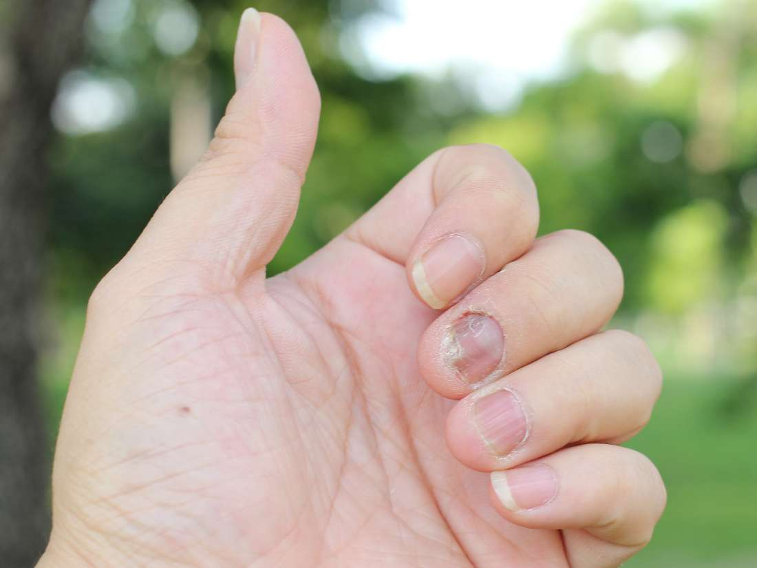 Nail psoriasis: What is it, treatment, and home remedies