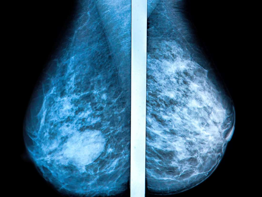 Mammogram Images Normal, Abnormal, And Breast Cancer-4891