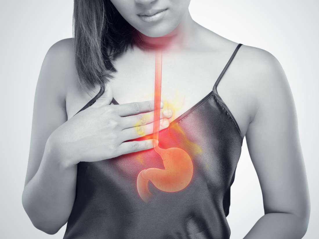 Heartburn, acid reflux, and GERD: What's the difference?