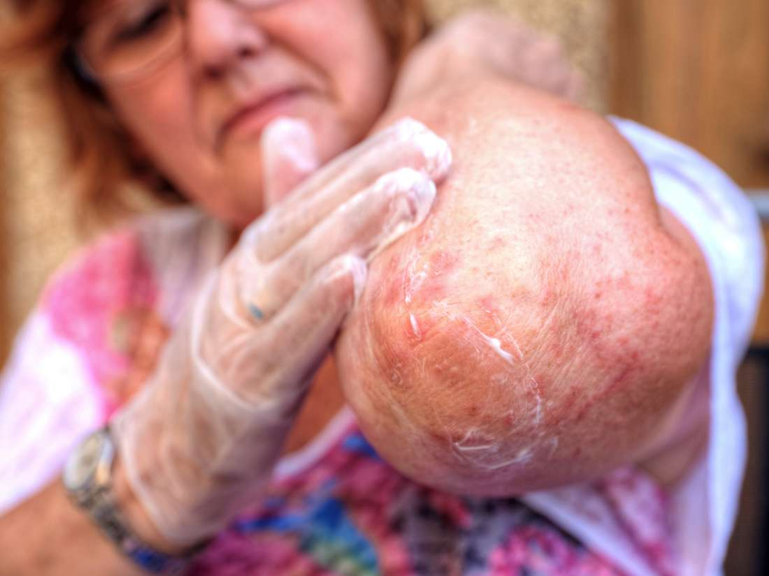 Psoriasis vs  eczema: Differences in symptoms and treatment