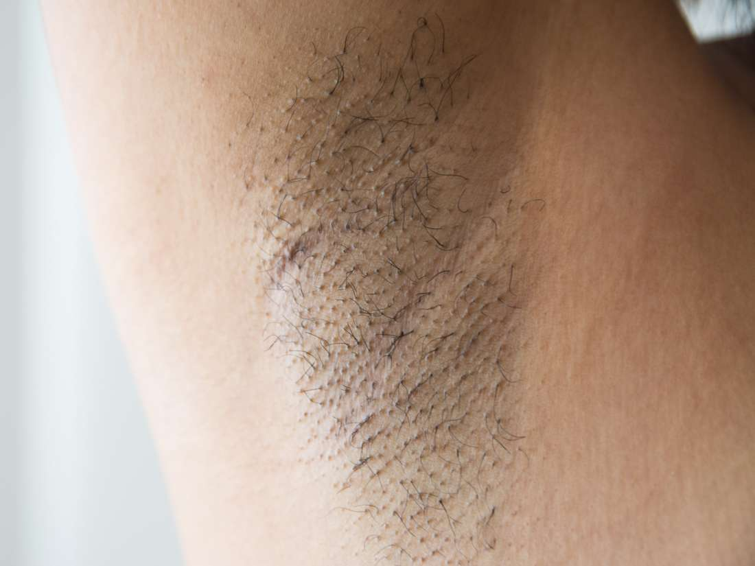 Armpit Pain Common Causes And Treatments