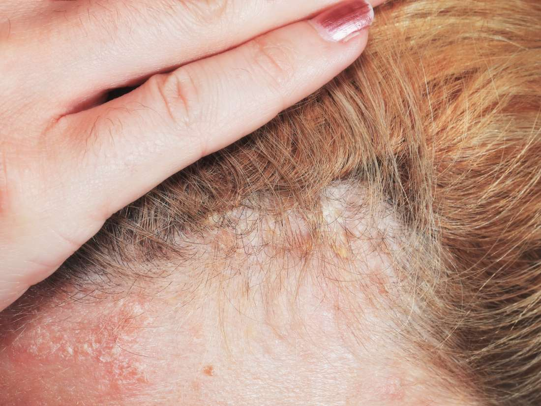 Psoriasis or dandruff? Symptoms, treatment, and tips