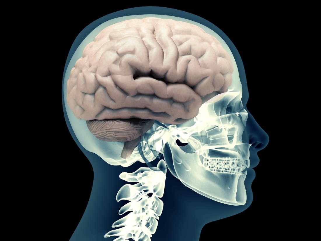 Subarachnoid hemorrhage: Symptoms, causes, and diagnosis