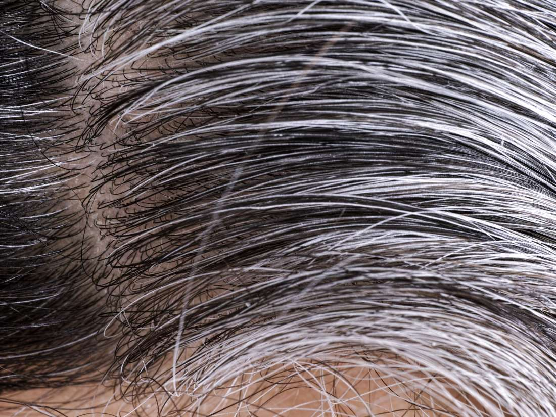 White pubic hair: Four possible causes